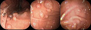 Fundic gland polyposis congenital disorder of digestive system