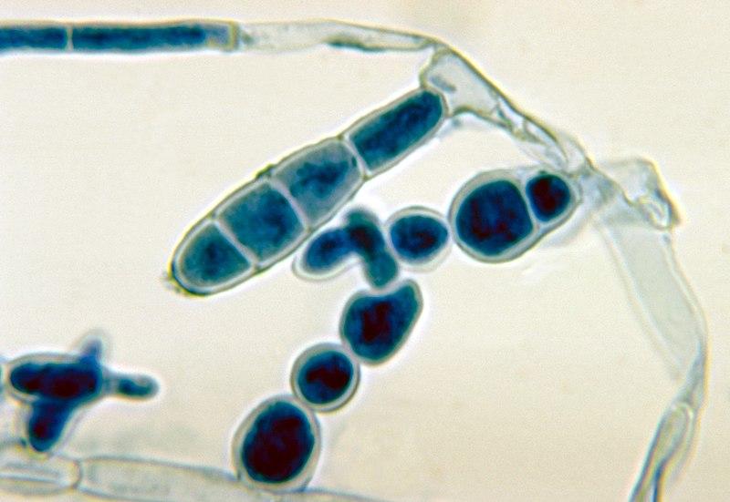 Патогенный грибок Epidermophyton floccosum.
