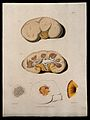 Five sections of diseased kidney. Coloured mezzotint by W. S Wellcome V0009747ER.jpg