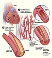 Hdw microvascular disease.jpg