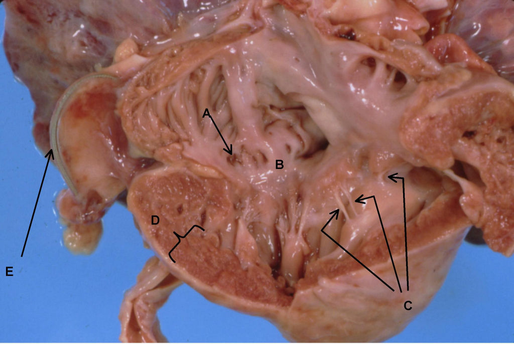 Heart Anatomy Coronary Sinus