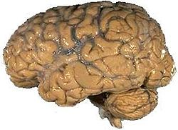 Truri........ 250px-Human_brain_NIH