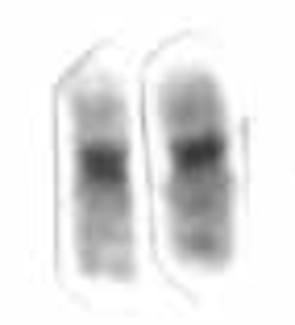 Chromosome 19 (human) - Human chromosome 19 pair after G-banding. One is from mother, one is from father.
