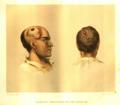 MSHWR Gunshot fracture cranium part I vol 2 pag 207.tiff