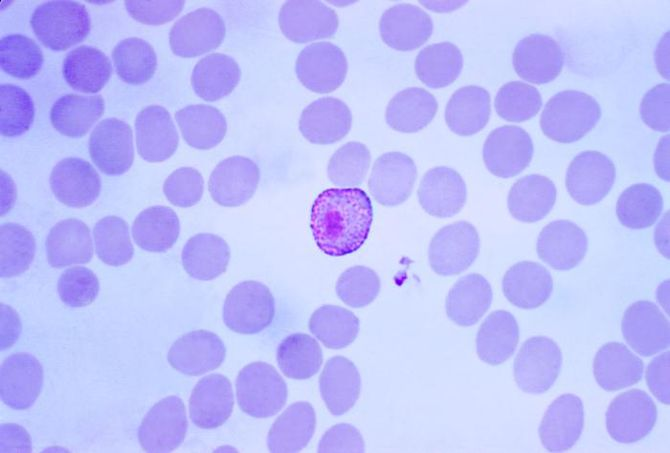 Microgametocyte of the parasite Plasmodium viv...