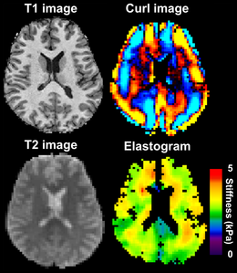 Murphy 2013 brain MRE with wave image.png