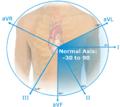 Normal EKG axis.png