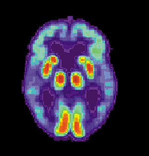 English: PET scan of a human brain with Alzhei...