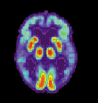 Procedural memory - Alzheimer patient