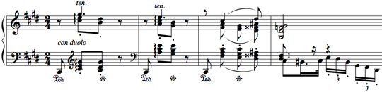 In the second movement, the piano plays a variation of the main melody. Piano Concerto No. 1, II - Moszkowski.png