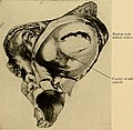 Principles and practice of physical diagnosis (1911) (14741948196).jpg