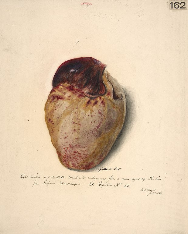 File:Right auricle and ventricle of the heart Wellcome L0061488.jpg ...