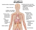 Signs and symptoms of anaphylaxis-IT.png