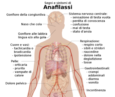 Segni e sintomi dell'anafilassi.