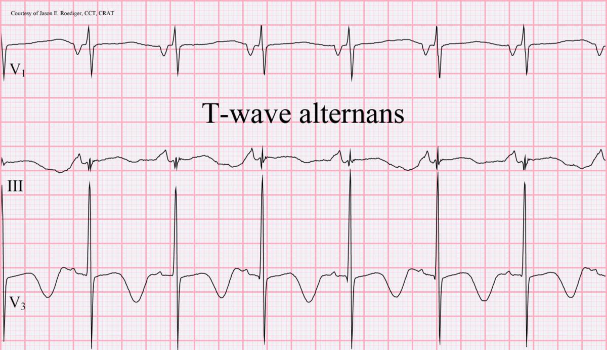 T wave alternans - Wikipedia