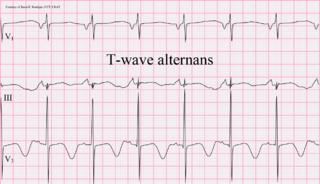 T wave alternans