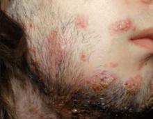 skinsight - Tinea Barbae (Ringworm of Beard)