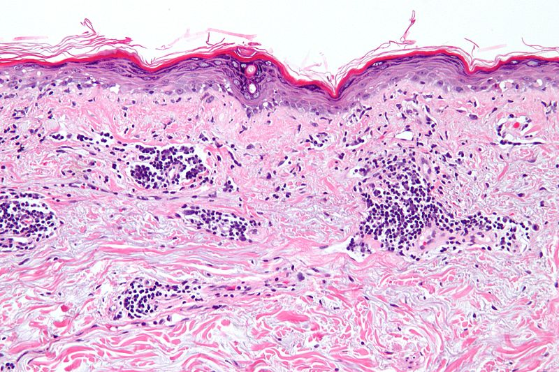 File:Vacuolar interface dermatitis - high mag.jpg