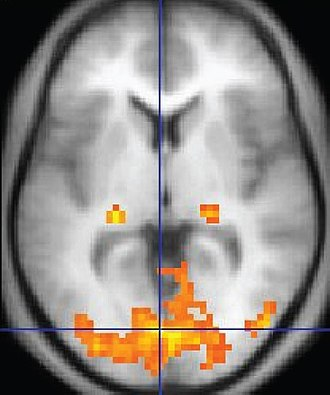 Functional magnetic resonance imaging - An fMRI image with yellow areas showing increased activity compared with a control condition.