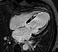 4CH IR infarct.jpg