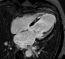 Cardiac magnetic resonance imaging - Wikipedia