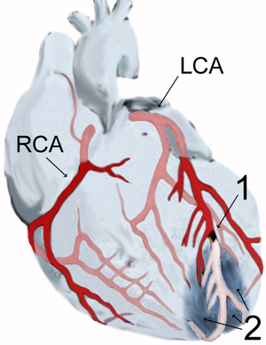 Myocardial infarction wikipedia diagram showing the blood supply to the heart by the two major blood vessels the left and right coronary arteries labelled lca and rca ccuart Images