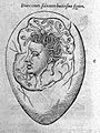 An egg with a human head covered with snakes. Wellcome L0006648.jpg