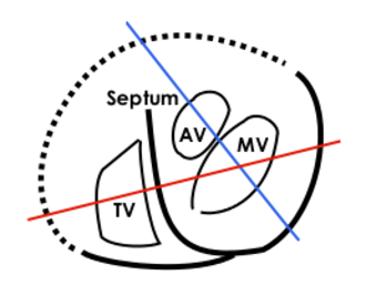 Heart valve - This is further explanation of the echocardiogram above. MV: Mitral valve, TV: Tricuspid valve, AV: Aortic valve, Septum: Interventricular septum. Continuous lines demarcate septum and free wall seen in echocardiogram, dotted line is a suggestion of where the free wall of the right ventricle should be. The red line represents where the upper left loop in the echocardiogram transects the 3D-loop, the blue line represents the lower loop.