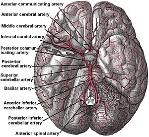 Posterior inferior cerebellar artery - The arteries of the base of the brain. Posterior inferior cerebellar artery labeled at bottom. The temporal pole of the cerebrum and a portion of the cerebellar hemisphere have been removed on the right side. Inferior aspect (viewed from below).
