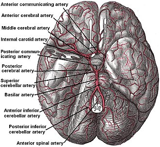 Anterior inferior cerebellar artery - The arteries of the base of the brain. Anterior inferior cerebellar artery labeled near bottom. The temporal pole of the cerebrum and a portion of the cerebellar hemisphere have been removed on the right side. Inferior aspect (viewed from below).