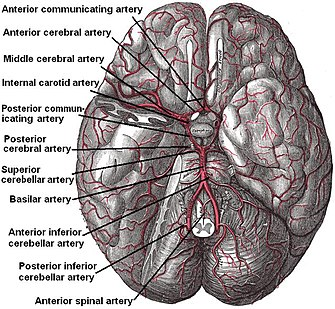 Posterior Inferior Cerebellar Artery Labeled At Bottom The Temporal Pole Of The Cerebrum And A Portion Of The Cerebellar Hemisphere Have Been Removed On