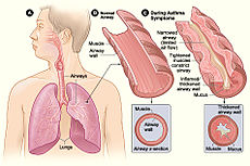 Asthma attack-illustration NIH.jpg