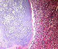 Bone Chondrosarcoma Dedifferentiated PA copy.jpg