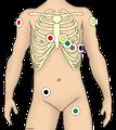 EKG-Ableitung unter Rettungsdienst-Bedingungen.png