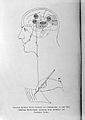 H. C. Bastian, A treatise on aphasia and other speech defects Wellcome L0028659.jpg