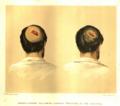 MSHWR Gunshot fracture cranium + hernia cerebri part I vol 2 pag 294.tiff