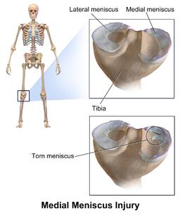 Medial Meniscus Injury