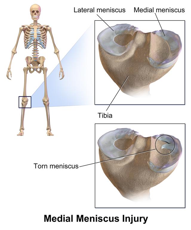 Medial meniscus - Wikiwand