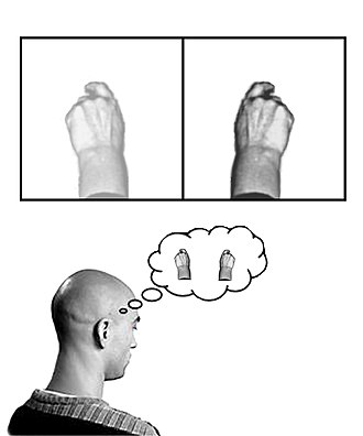 "Neuroplasticity - A diagrammatic explanation of the mirror box. The patient places the intact limb into one side of the box (in this case the right hand) and the amputated limb into the other side. Due to the mirror, the patient sees a reflection of the intact hand where the missing limb would be (indicated in lower contrast). The patient thus receives artificial visual feedback that the ""resurrected"" limb is now moving when they move the good hand."