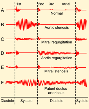 Shunt (medical) - Auscultogram from normal and abnormal heart sounds