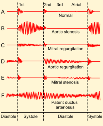 Systolic heart murmur - Auscultogram from normal and abnormal heart sounds