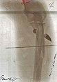 Radiographie d une blessure de guerre à la jambe par balle de fusil.jpg