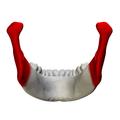 Ramus of the mandible - close up - posterior view.png