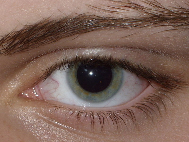 Picture of a Dilated Pupil, where the Pupil of the eye looks 3-4 times larger than normal