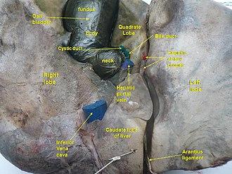 Portal vein - Image: Slide 14CHA