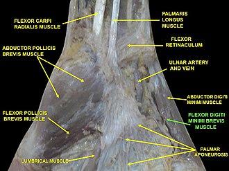 Flexor digiti minimi brevis muscle (hand) - Image: Slide 6VVV