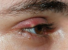 eb2f9f63604 A stye. There are a number of diseases or disorders involving the eyelashes:
