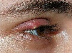 wiki de infección ocular apolo