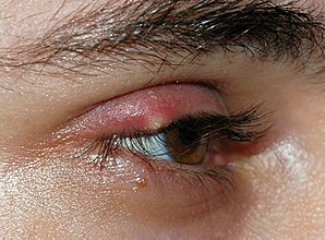 Picture of a stye on an eye lid