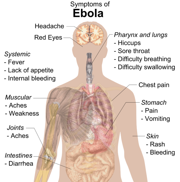 overview of ebola On jan 1, 2004 keri t holmes-maybank published: an overview of ebola.